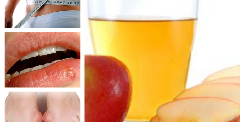 ябълков оцет, ползи, лечение
