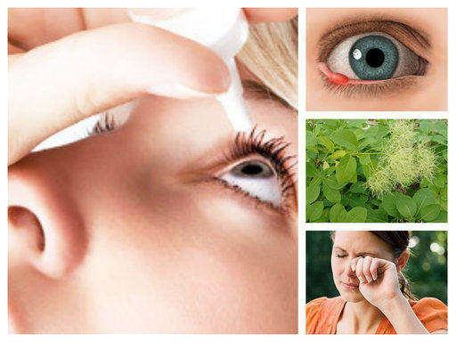 Ечемик на окото. Лечение: народно и с лекарства