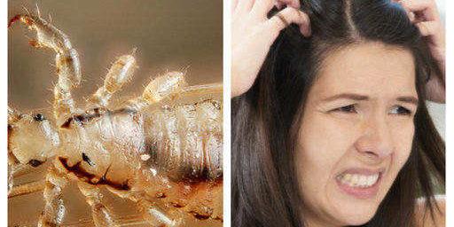 Препарат против въшки газ, мас и оцет