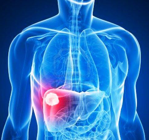 Резултат с изображение за Пречистване на черен дроб