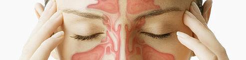 синузит, домашно лечение