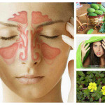 Проклятието синузит – да се избавим от него с билки и народна медицина