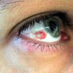 кръвоизлив в окото, спукан капиляр, кървясало око