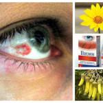 Кръвоизлив в окото – всичко за справяне с неприятния симптом
