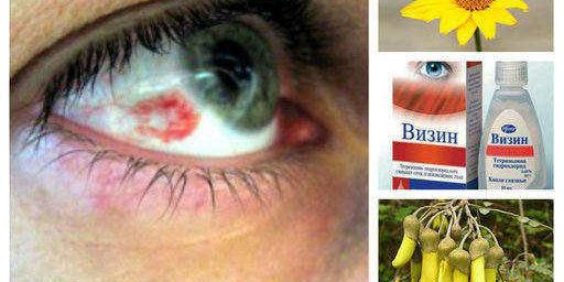 Кръвоизлив в окото, какво лечение