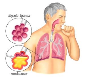 пневмония и бронхопневмония, билки