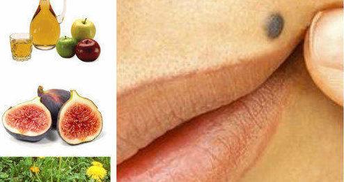 премахване на бенки, цена, кислородна вода, мед, крем
