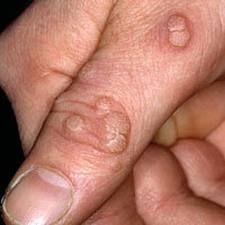 брадавици на ръцете