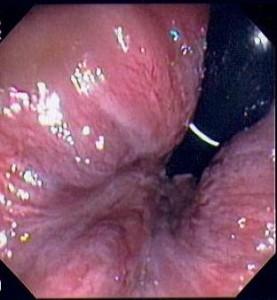 вътрешни хемороиди