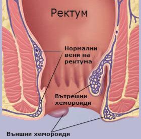 външни хемороиди