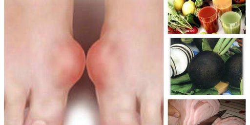 Симптоми и лечение на подагра с билки