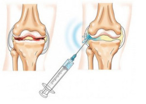 инжектиране на хиалуронова киселина и таблетки за стави
