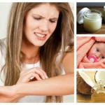 ТОП лекове за избавяне от мъчителната екзема (Изпитано!)