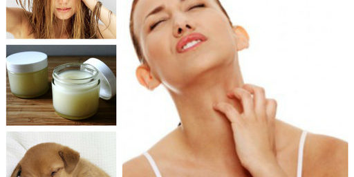 Лечение на краста с перметрин, сяра и мас