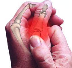 болки в пръстите на ръцете
