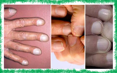 цироза симптоми нокти