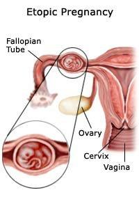 Извънматочна бременност често протича в една от фалопиевите тръби.