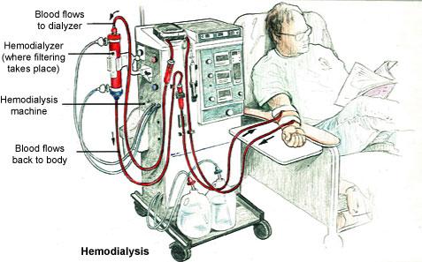 бъбречна недостатъчност хемодиализа