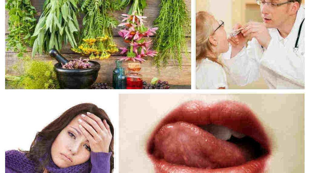 гъбички по езика, в устата и гърлото