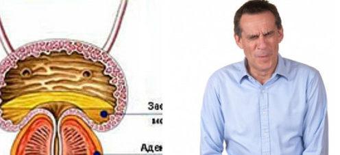 Парене при уриниране аденом на простатата