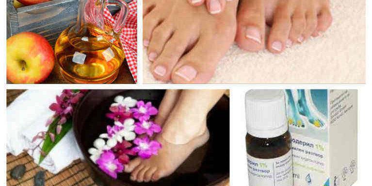 гъбички по краката лечение
