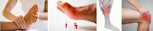 изтръпване на крака крайници ръце ляв крак коляно - 01 76