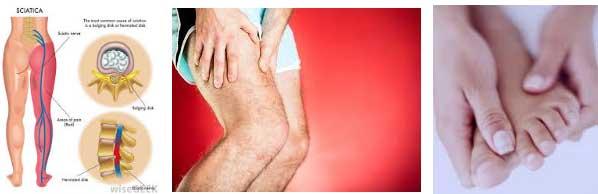 изтръпване на крака крайници ръце ляв крак коляно - 01 34
