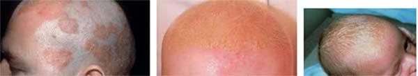 себореен дерматит глава лице коса крем лечение - 01232