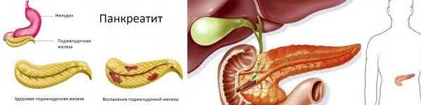 болки в стомаха 05 панкреатит