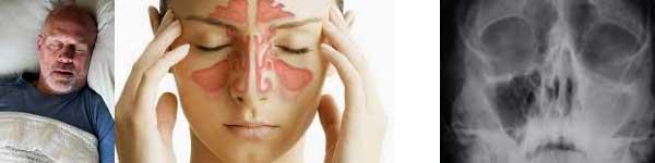 хъркане сънна апнея синузит