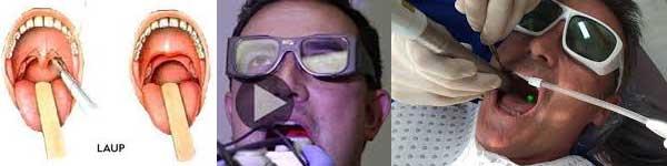 хъркане сънна апнея лазер операция