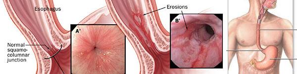 рефлукс езофагит лечение методи