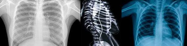 рефлукс езофагит изследвания рентген