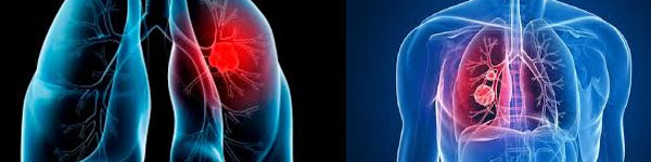 абсцес лечение 0120 белия дроб