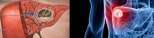 абсцес лечение 018 черен дроб