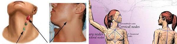 абсцес лечение 017 лимфни възли