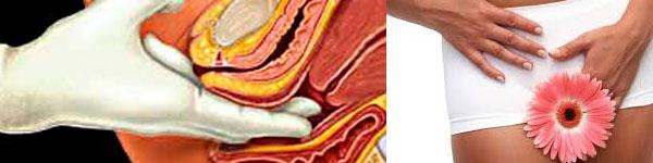 абсцес лечение 013 бартолинит, бартолинова жлеза