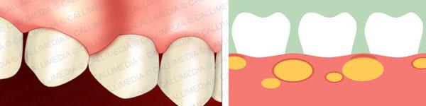 абсцес лечение 05 зъбен дентален 012