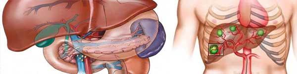 рак на дебелото черво - 025 - метастази в черния дроб