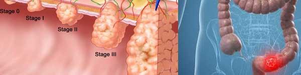 рак на дебелото черво - 023 - карцином