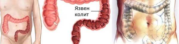 рак на дебелото черво - 022 - възпаление, колит