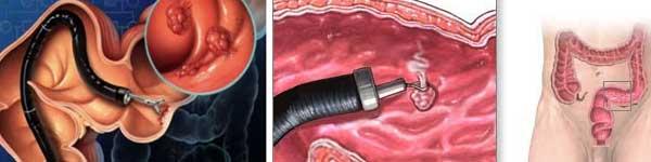 рак на дебелото черво - 08 - биопсия