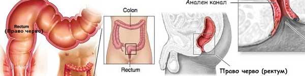 рак на дебелото черво - 04 - ректум