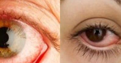 стафилококи в очите