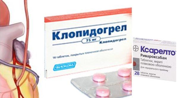Фраксипарин. Хепарин. Варфарин