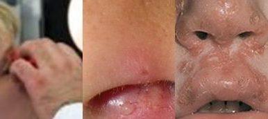 Стафилококи в носа
