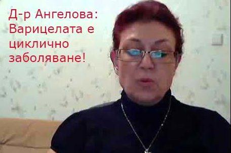 д-р Ангелова варицела лечение симптоми