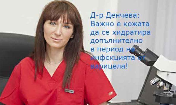 д-р Росица Денчева варицела