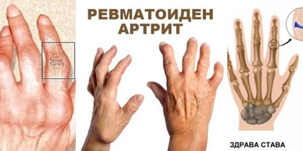 ревматоиден артрит на ръцете