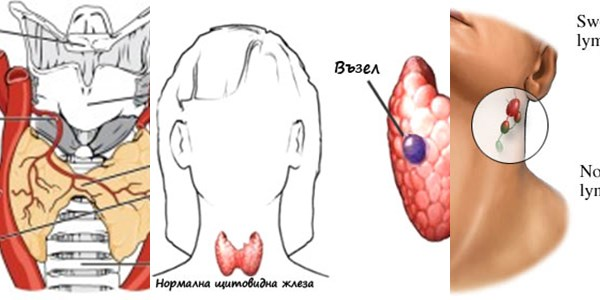щитовидна жлеза базедова болест